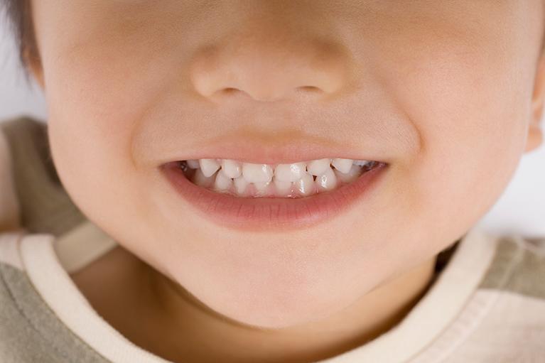 お子さまの歯並びが気になる方へ